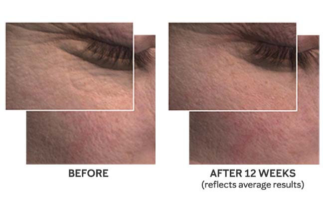 Detailed before and after snapshots of the skin around the eye show wrinkles and fine lines appearing less noticeable to illustrate average results from using Mary Kay's new TimeWise Miracle Set 3D.